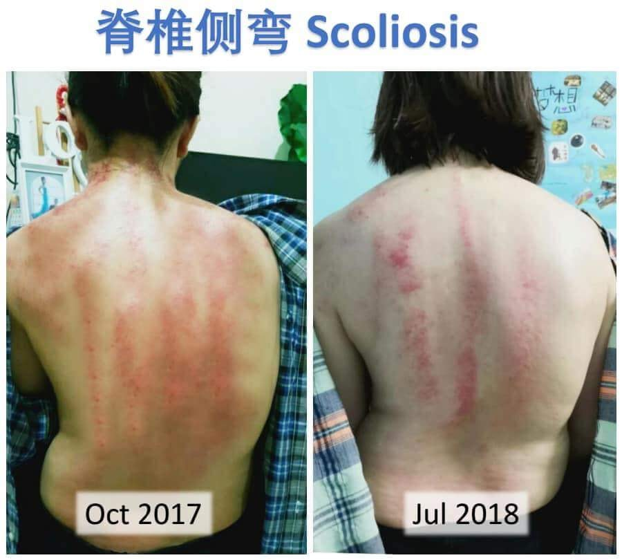 Scoliosis review